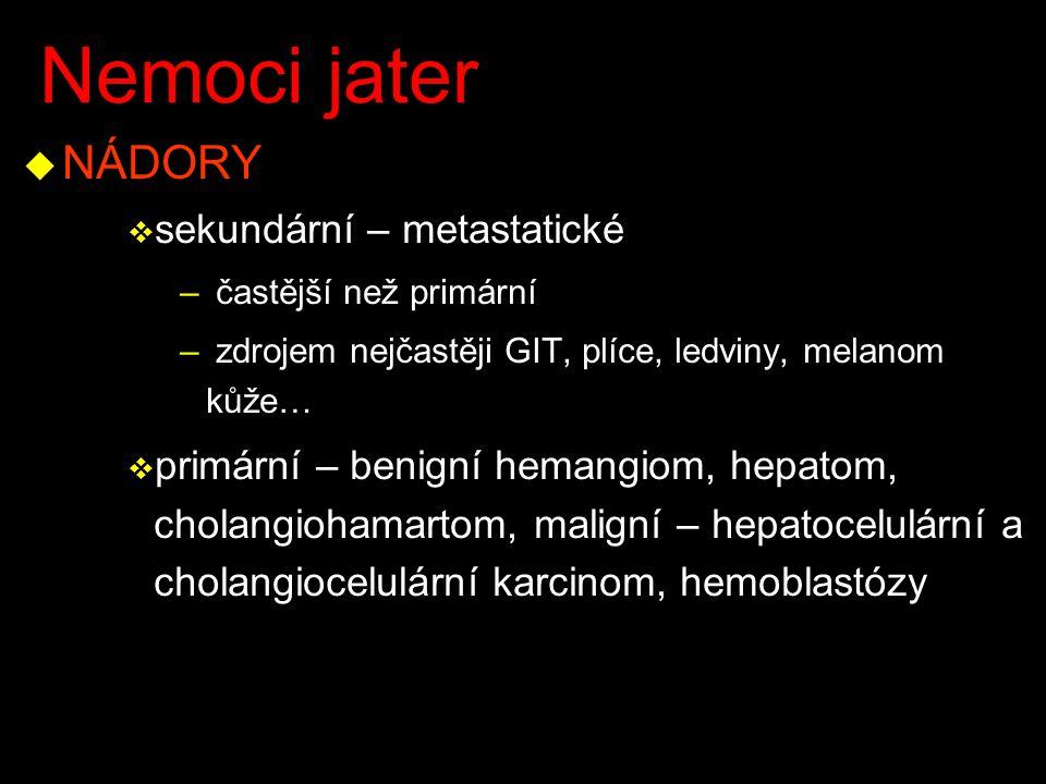 Nemoci jater NÁDORY sekundární – metastatické