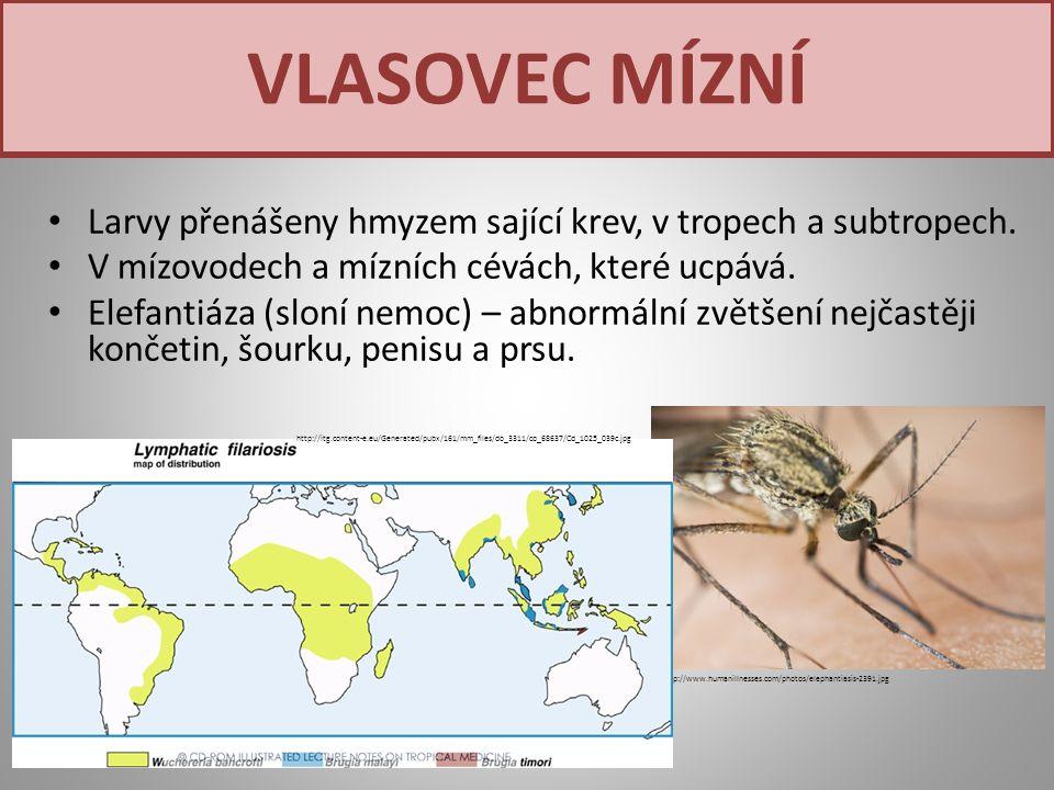 VLASOVEC MÍZNÍ Larvy přenášeny hmyzem sající krev, v tropech a subtropech. V mízovodech a mízních cévách, které ucpává.