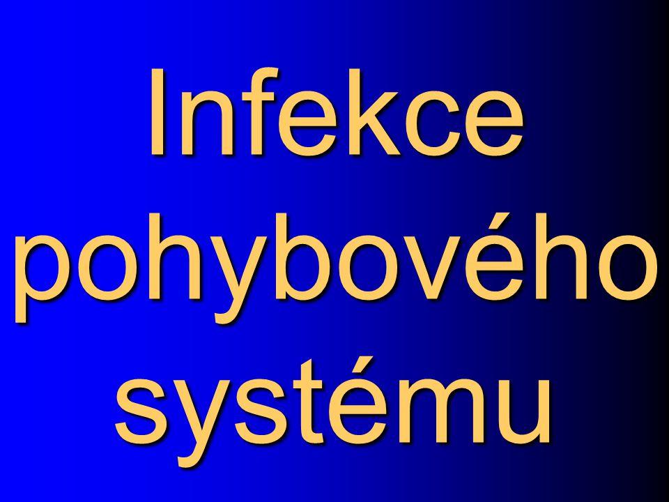 Infekce pohybového systému