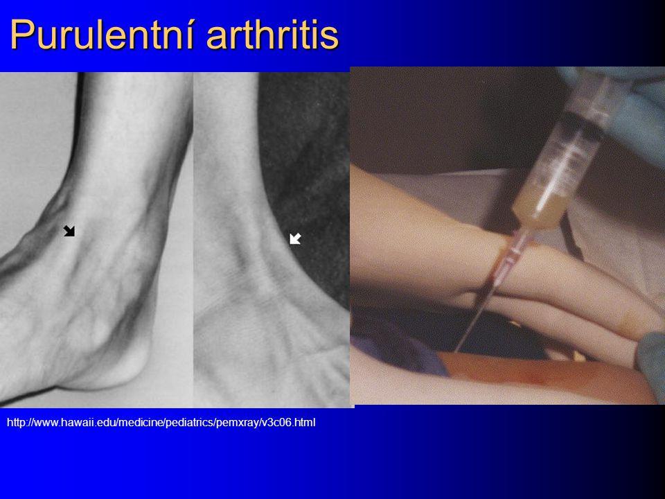 Purulentní arthritis http://www.hawaii.edu/medicine/pediatrics/pemxray/v3c06.html