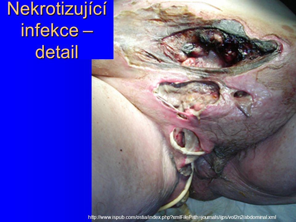 Nekrotizující infekce – detail