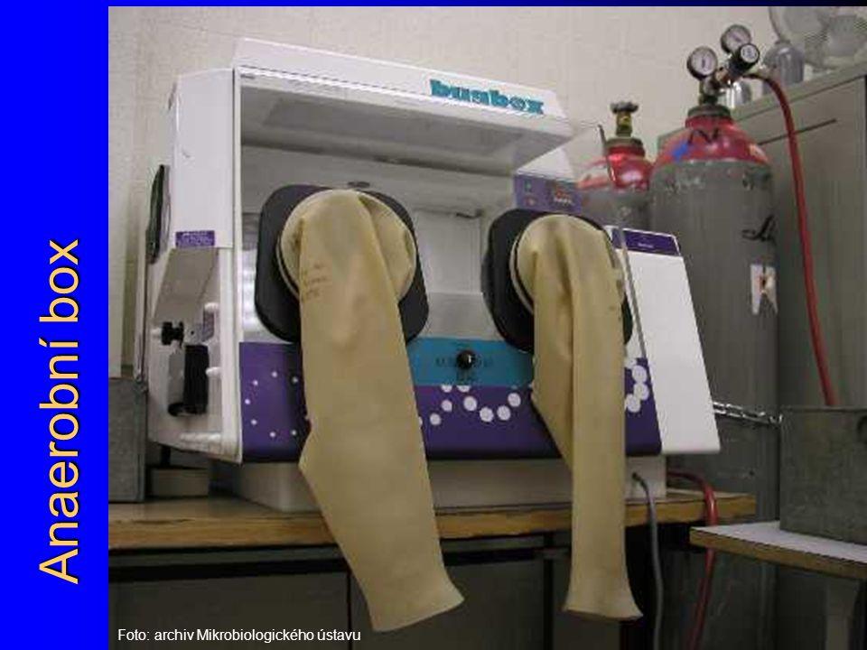 Anaerobní box Foto: archiv Mikrobiologického ústavu