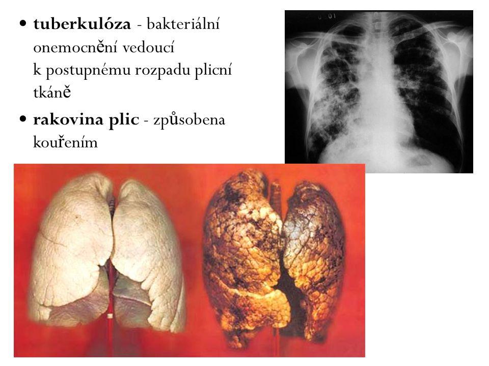tuberkulóza - bakteriální onemocnění vedoucí k postupnému rozpadu plicní tkáně