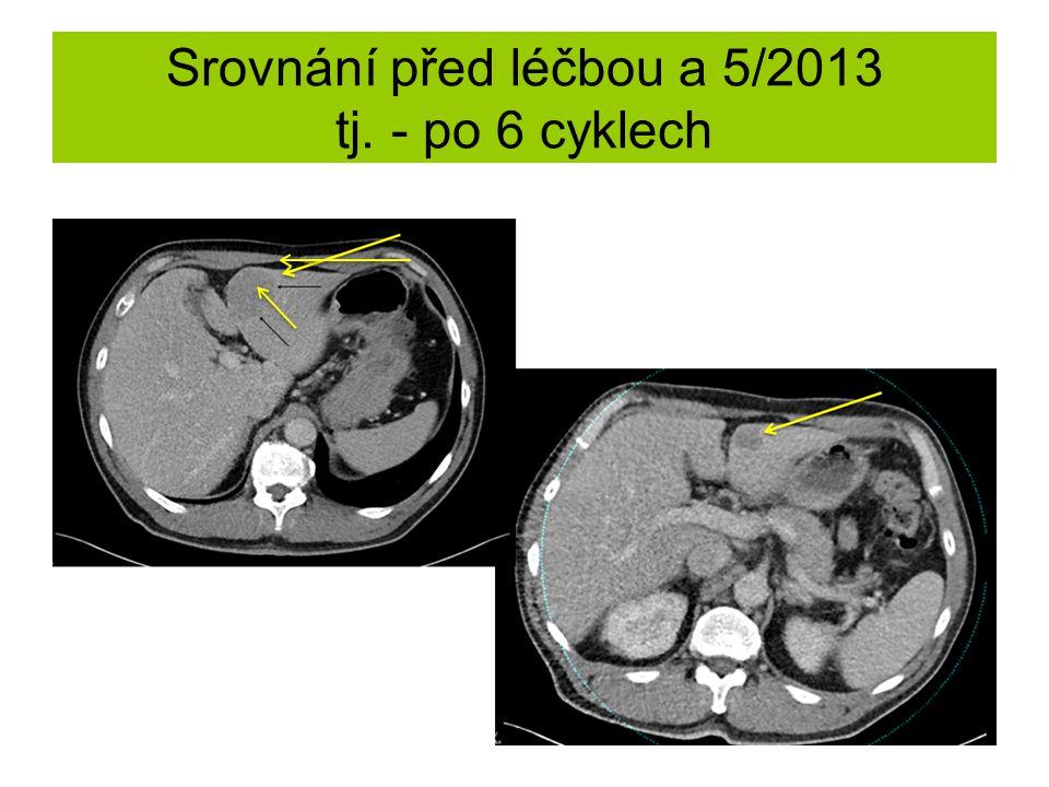 Srovnání před léčbou a 5/2013 tj. - po 6 cyklech