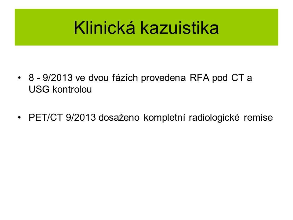 Klinická kazuistika 8 - 9/2013 ve dvou fázích provedena RFA pod CT a USG kontrolou. PET/CT 9/2013 dosaženo kompletní radiologické remise.