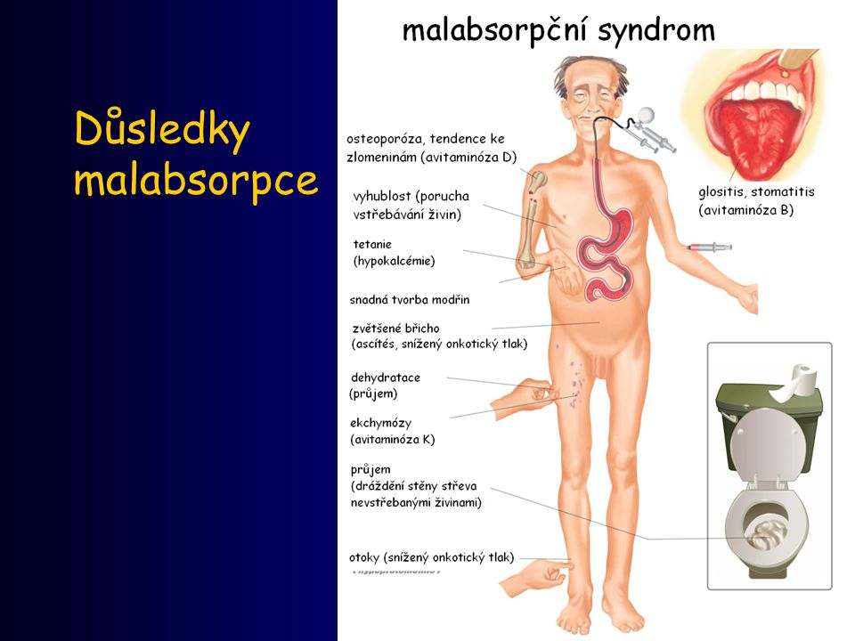 Důsledky malabsorpce