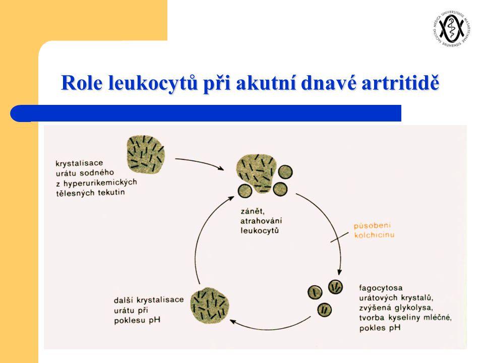 Role leukocytů při akutní dnavé artritidě