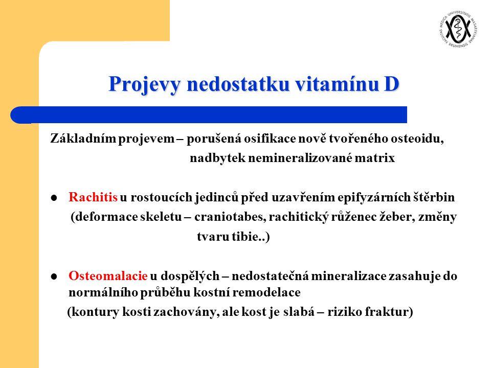 Projevy nedostatku vitamínu D