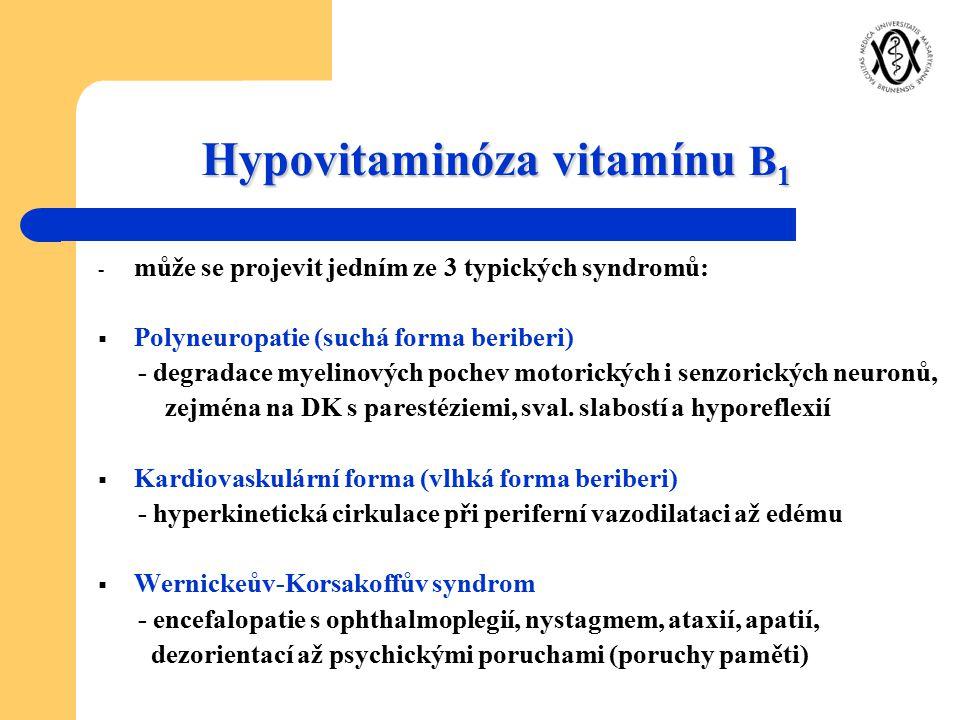 Hypovitaminóza vitamínu B1