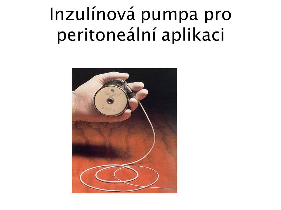 Inzulínová pumpa pro peritoneální aplikaci