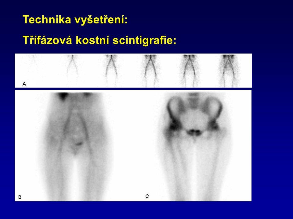Technika vyšetření: Třífázová kostní scintigrafie: