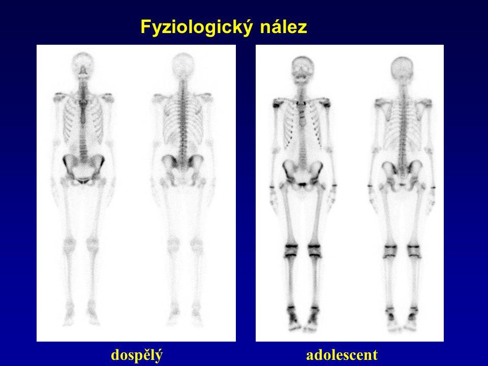 Fyziologický nález dospělý adolescent