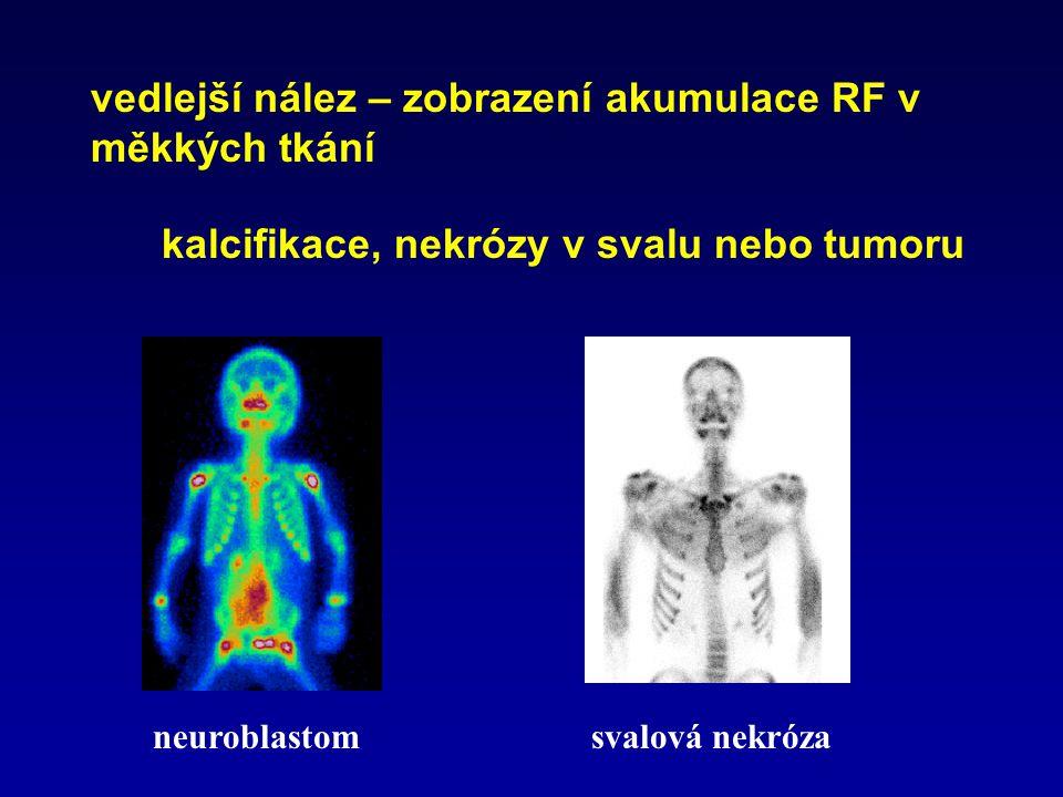 vedlejší nález – zobrazení akumulace RF v měkkých tkání