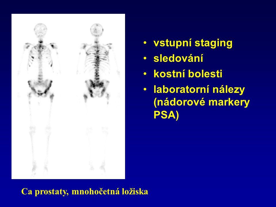 laboratorní nálezy (nádorové markery PSA)