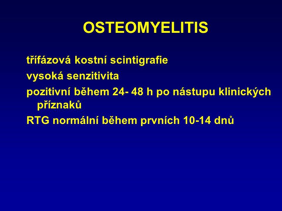 OSTEOMYELITIS třífázová kostní scintigrafie vysoká senzitivita