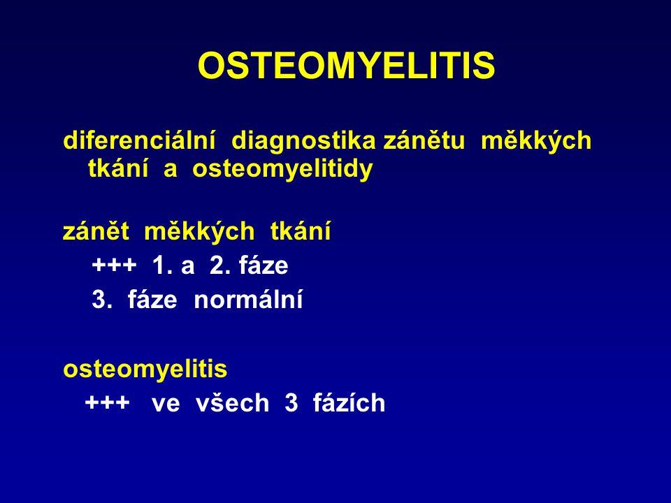 OSTEOMYELITIS diferenciální diagnostika zánětu měkkých tkání a osteomyelitidy. zánět měkkých tkání.