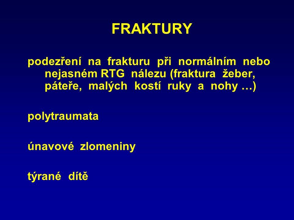 FRAKTURY podezření na frakturu při normálním nebo nejasném RTG nálezu (fraktura žeber, páteře, malých kostí ruky a nohy …)