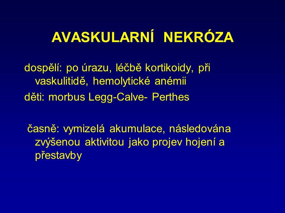 AVASKULARNÍ NEKRÓZA dospělí: po úrazu, léčbě kortikoidy, při vaskulitidě, hemolytické anémii. děti: morbus Legg-Calve- Perthes.