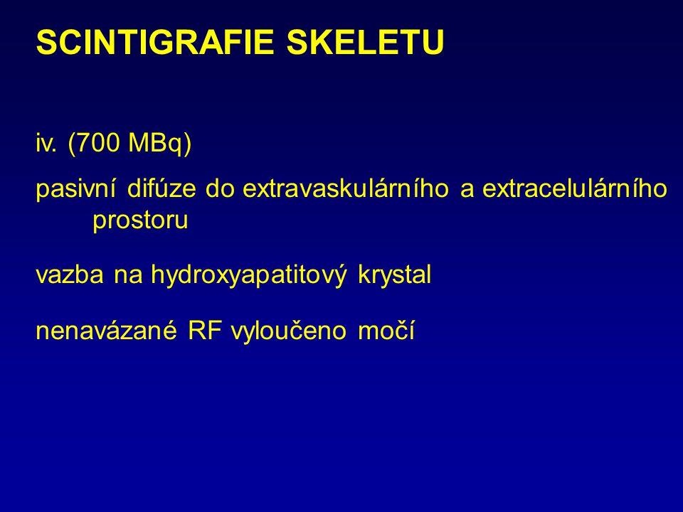 SCINTIGRAFIE SKELETU iv. (700 MBq)