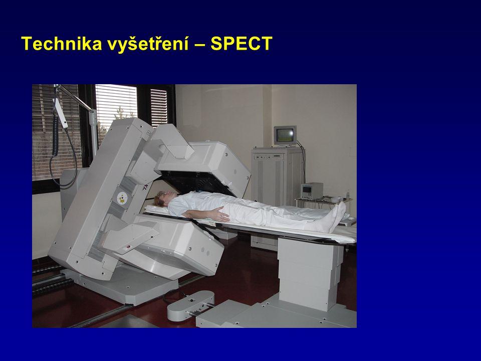 Technika vyšetření – SPECT