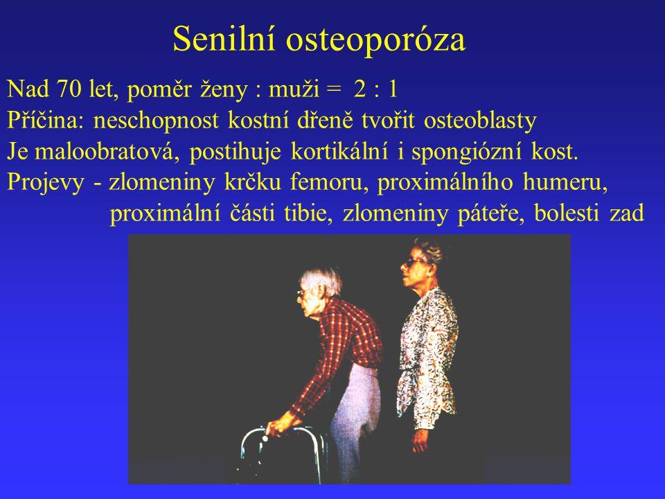 Senilní osteoporóza Nad 70 let, poměr ženy : muži = 2 : 1