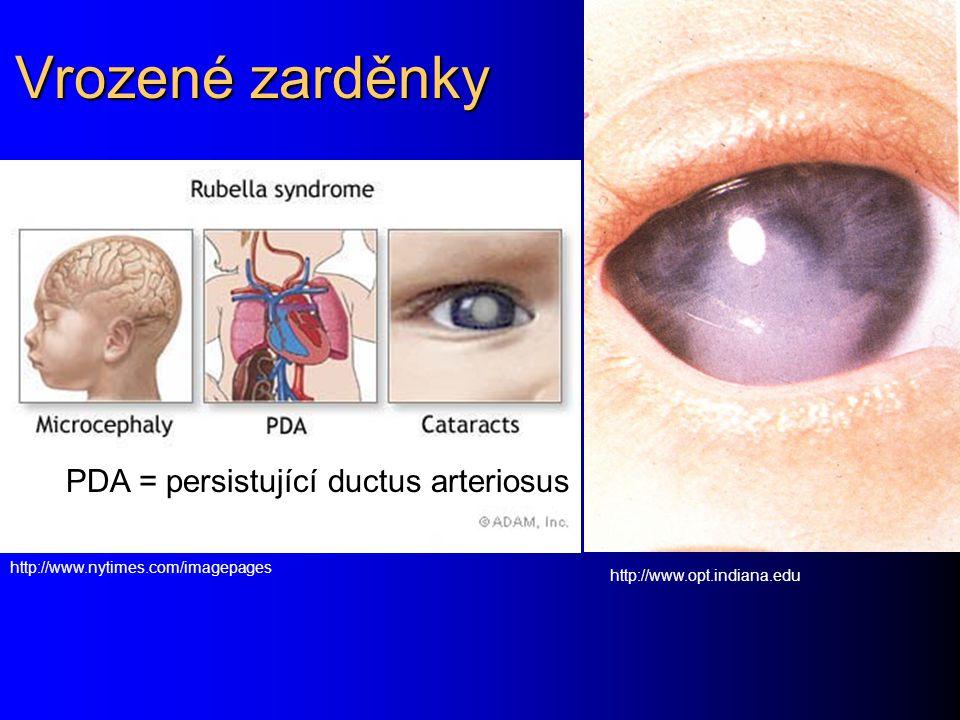 Vrozené zarděnky PDA = persistující ductus arteriosus