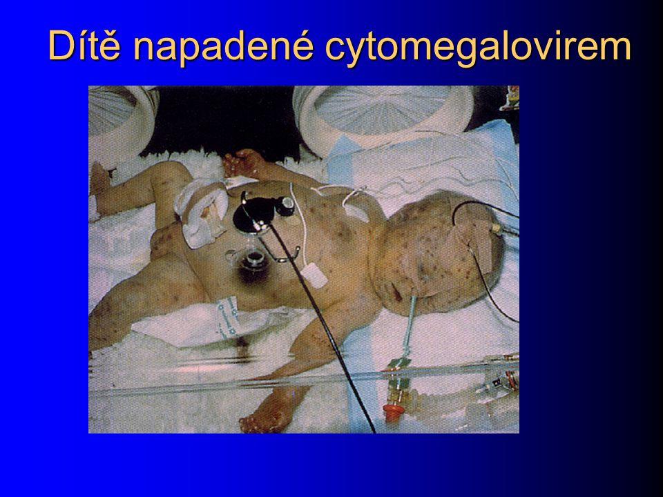 Dítě napadené cytomegalovirem