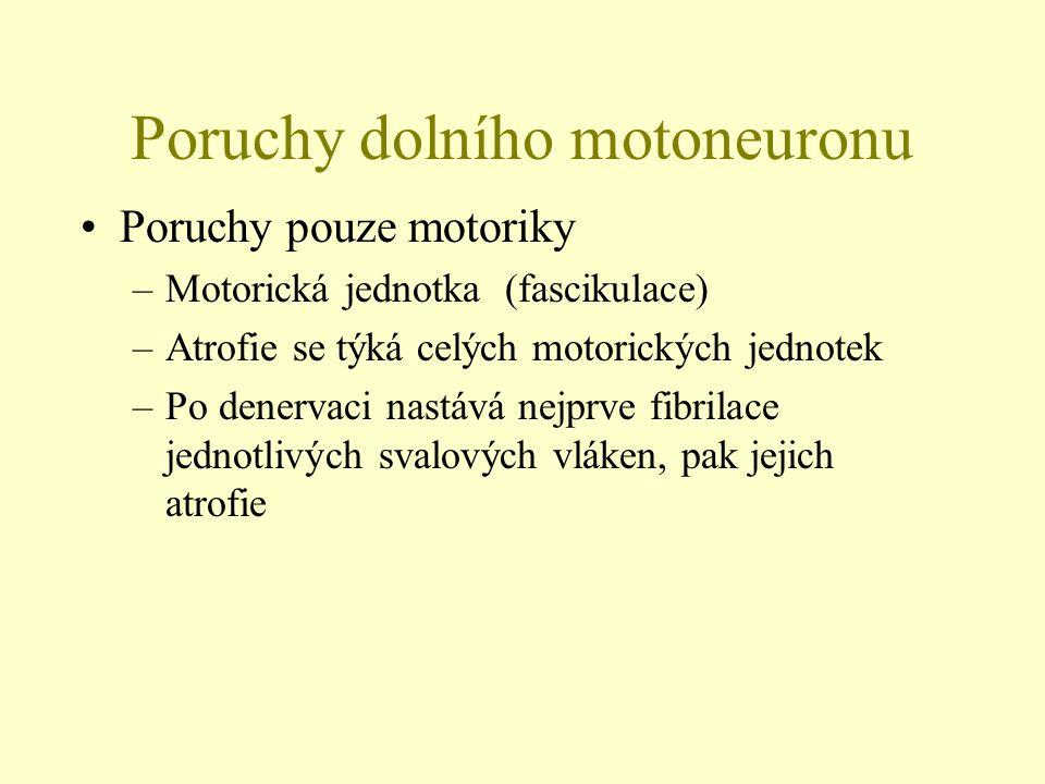 Poruchy dolního motoneuronu