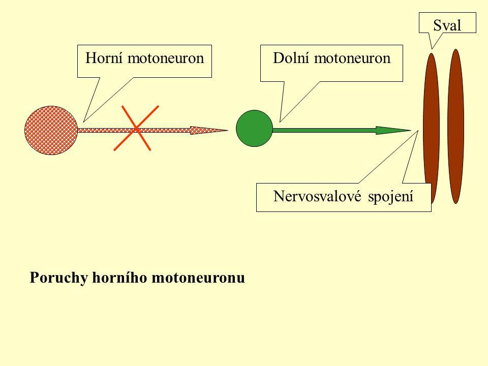 Sval Horní motoneuron Dolní motoneuron Nervosvalové spojení Poruchy horního motoneuronu