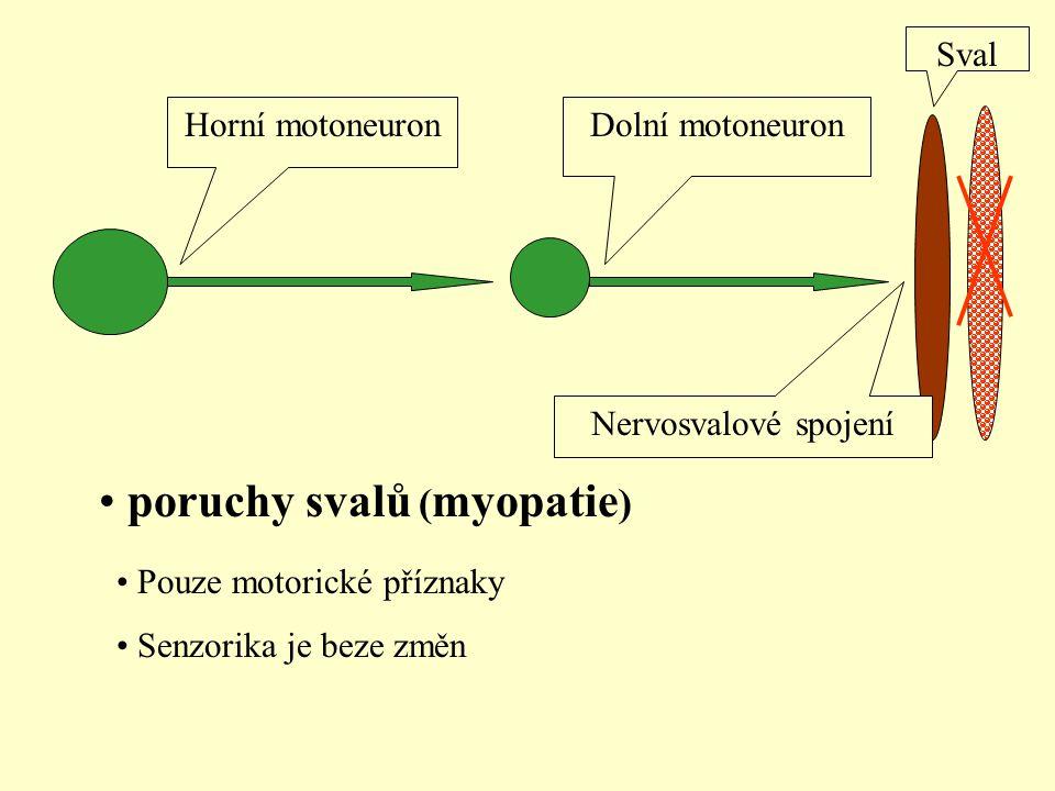 poruchy svalů (myopatie)