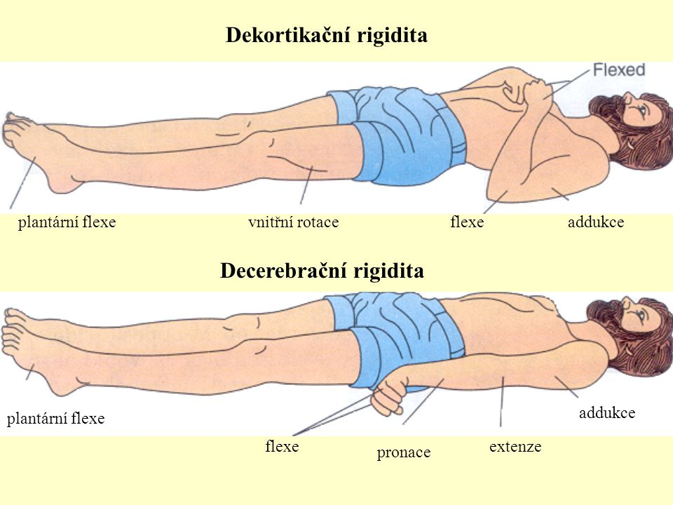 Dekortikační rigidita