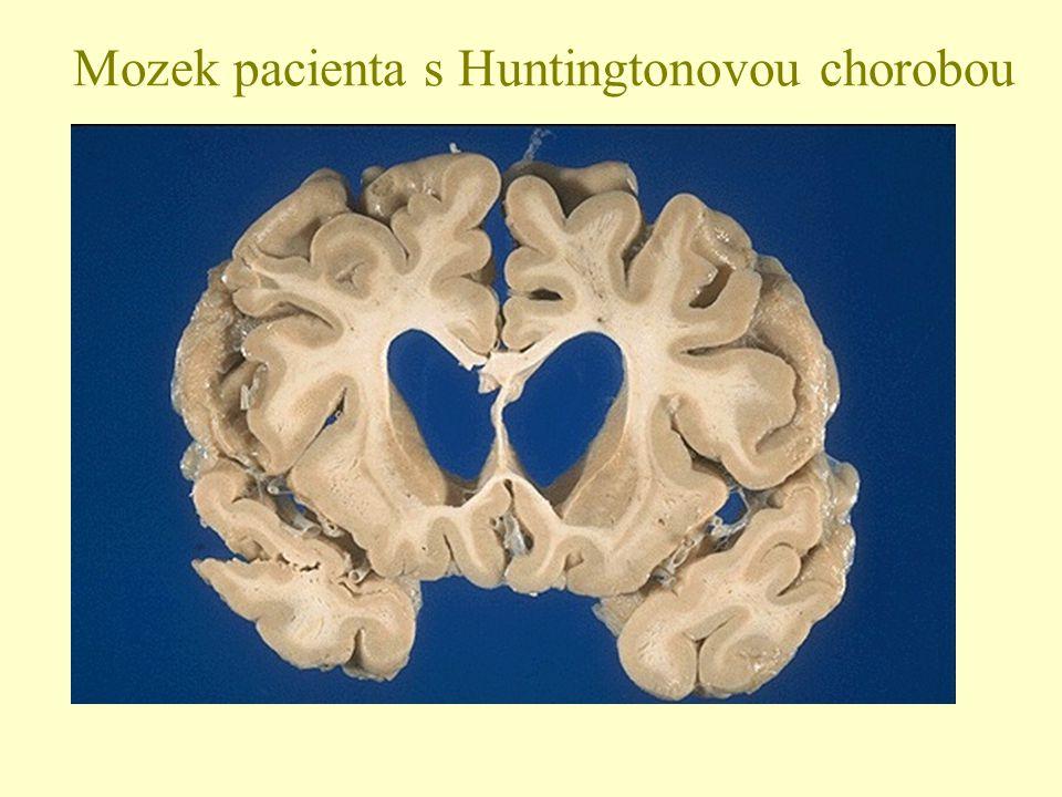 Mozek pacienta s Huntingtonovou chorobou