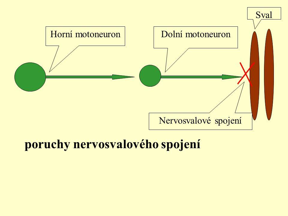 Sval Horní motoneuron Dolní motoneuron Nervosvalové spojení poruchy nervosvalového spojení