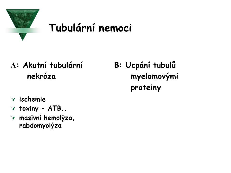 Tubulární nemoci A: Akutní tubulární nekróza B: Ucpání tubulů
