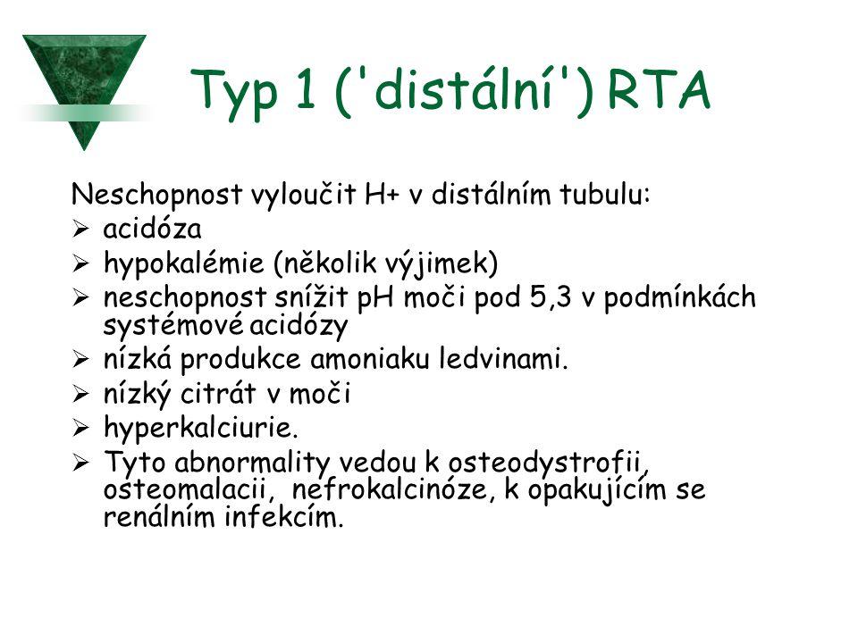Typ 1 ( distální ) RTA Neschopnost vyloučit H+ v distálním tubulu: