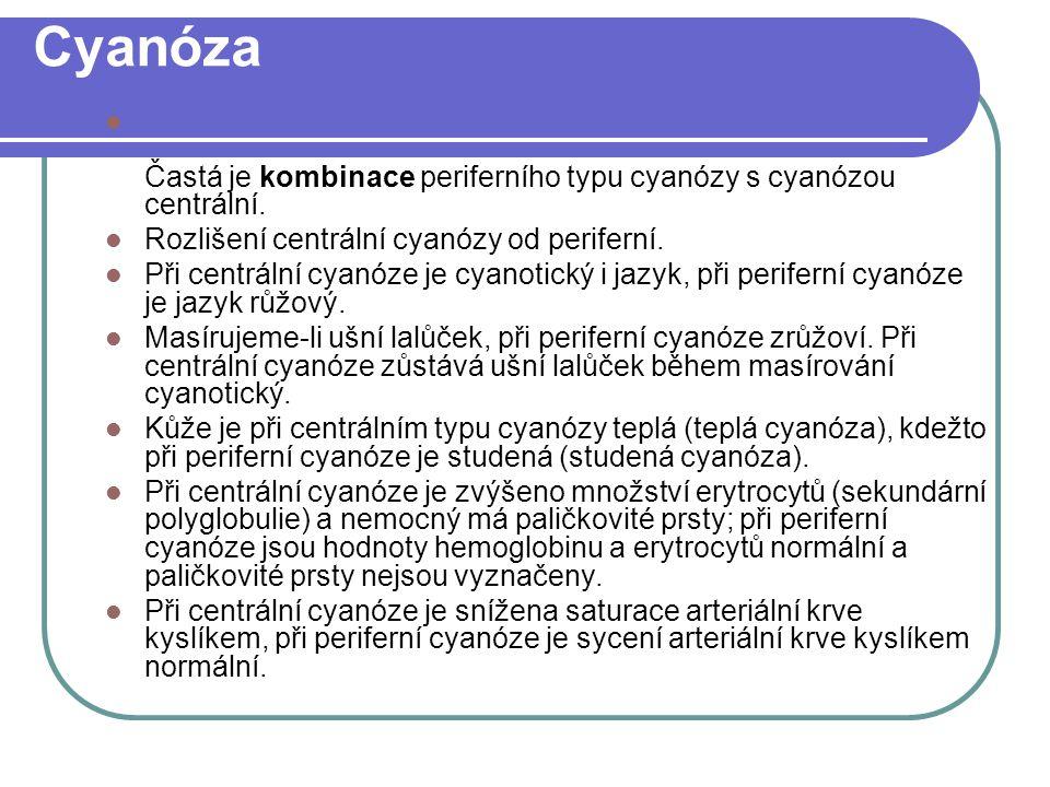 Cyanóza Častá je kombinace periferního typu cyanózy s cyanózou centrální. Rozlišení centrální cyanózy od periferní.
