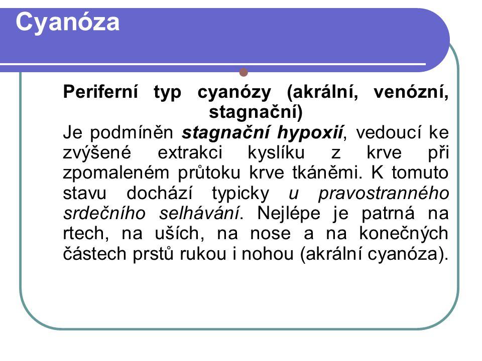 Cyanóza