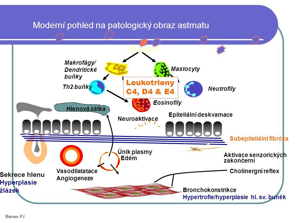 Moderní pohled na patologický obraz astmatu