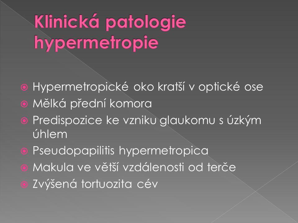 Klinická patologie hypermetropie