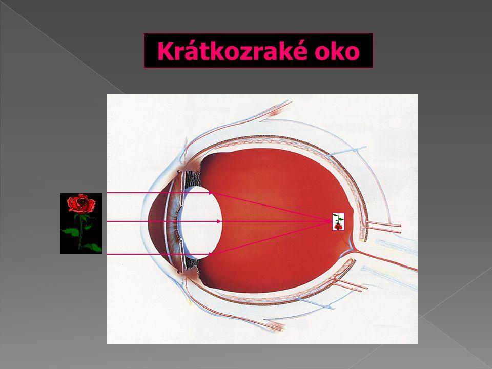 Krátkozraké oko