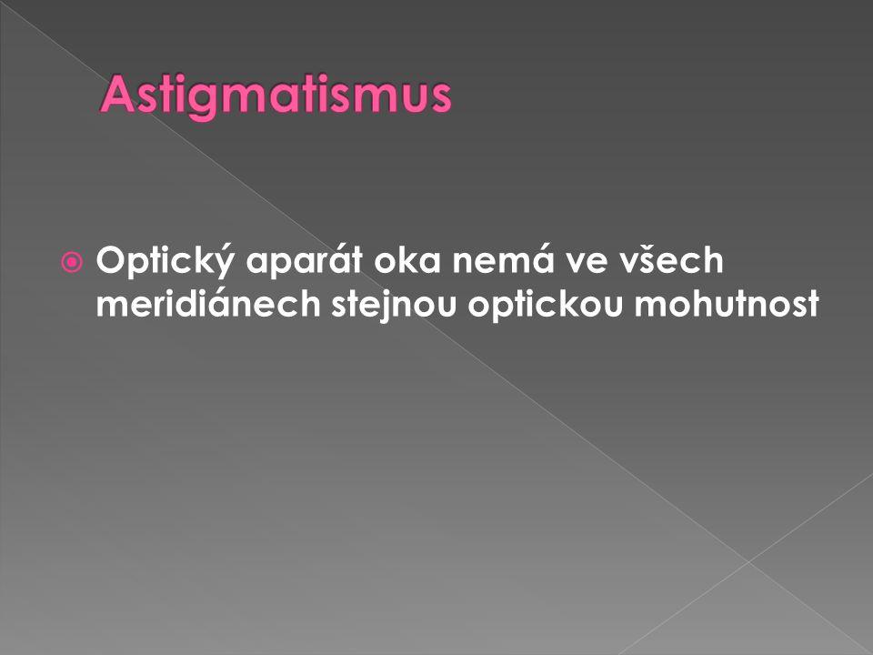 Astigmatismus Optický aparát oka nemá ve všech meridiánech stejnou optickou mohutnost