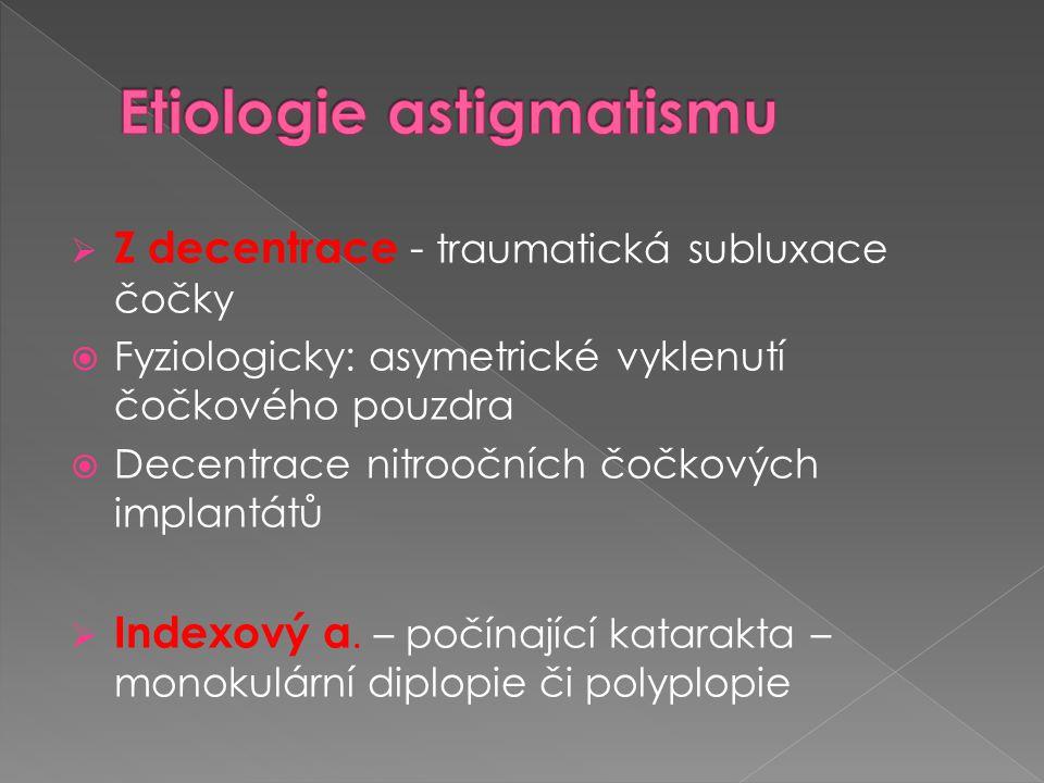 Etiologie astigmatismu