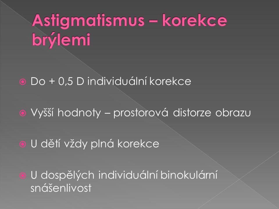 Astigmatismus – korekce brýlemi