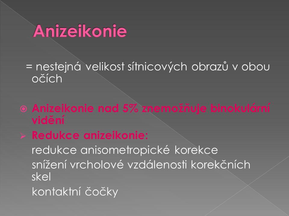 Anizeikonie = nestejná velikost sítnicových obrazů v obou očích