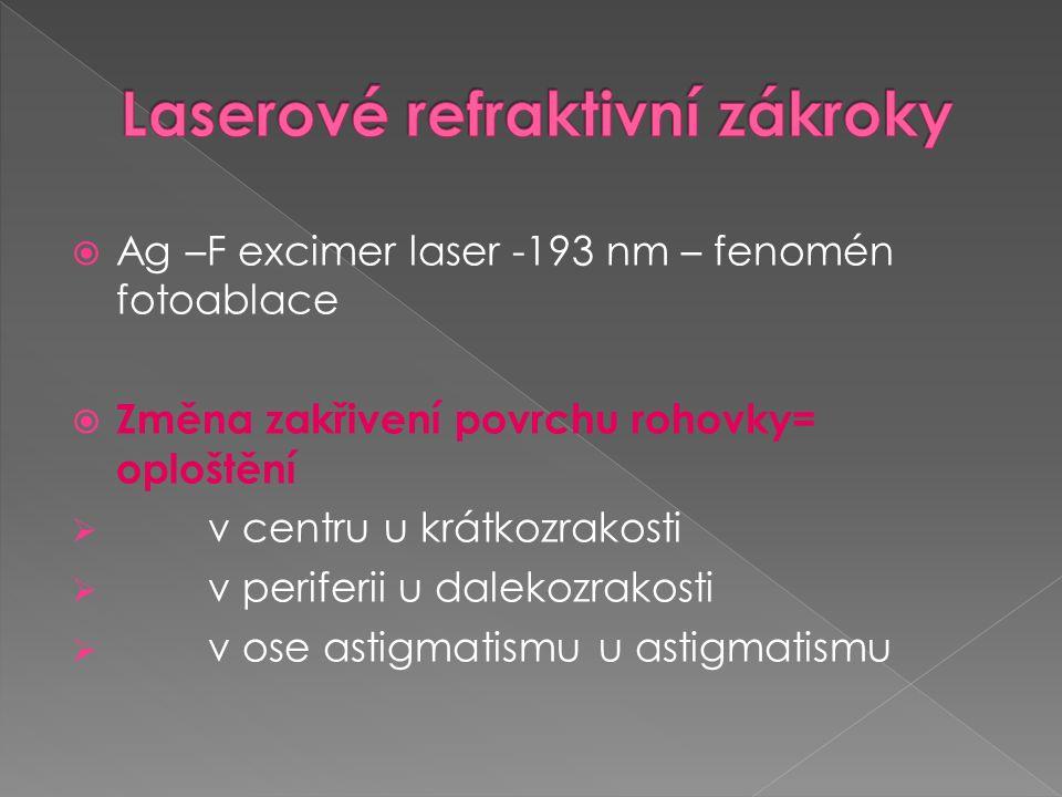 Laserové refraktivní zákroky