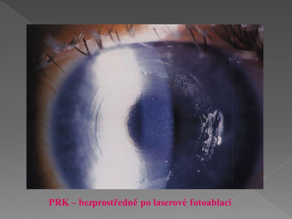 PRK – bezprostředně po laserové fotoablaci