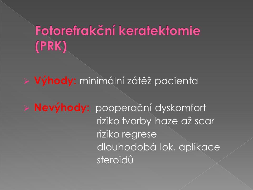 Fotorefrakční keratektomie (PRK)