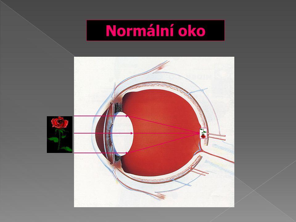Normální oko