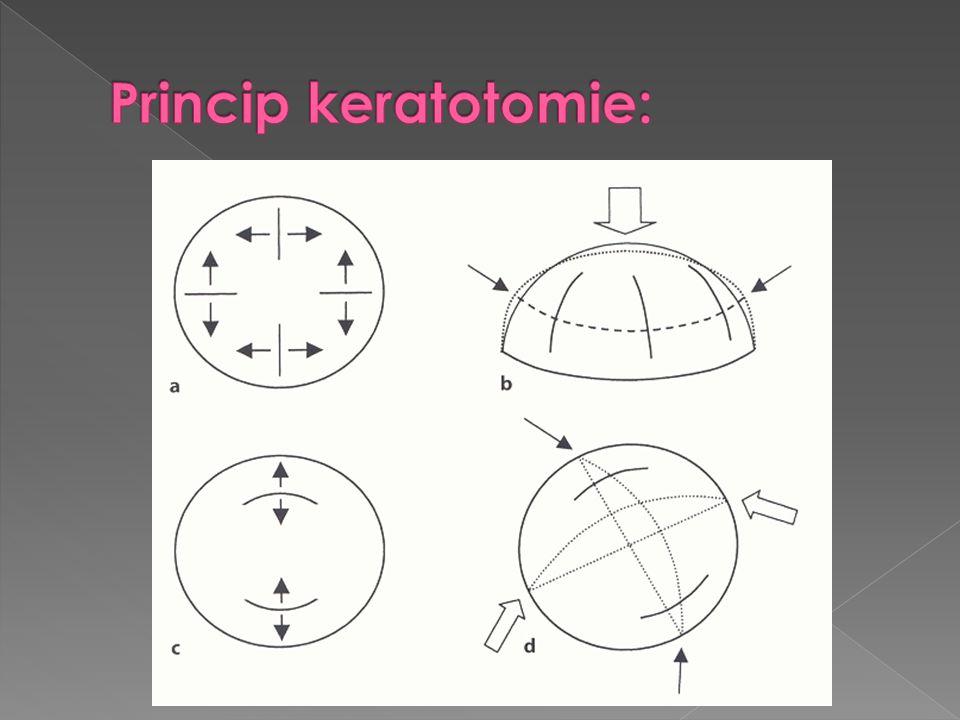 Princip keratotomie: