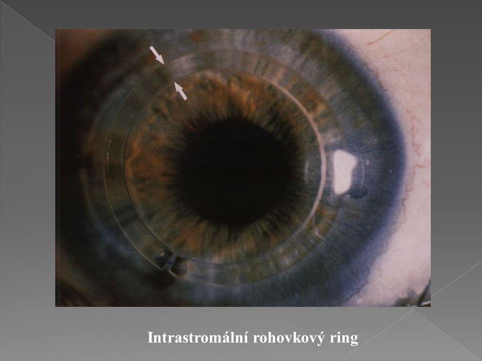 Intrastromální rohovkový ring